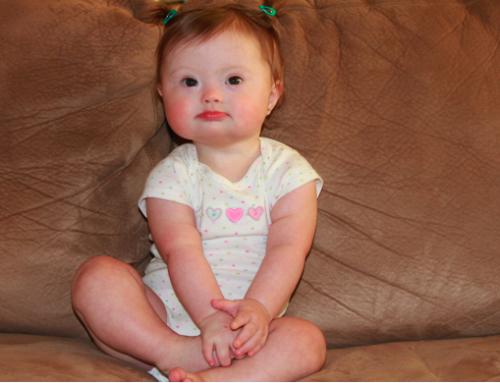 Merawat kecacatan bayi